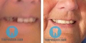 temporarer zahn foto