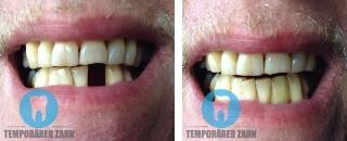 temporarer zahn vorher nachher