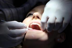 Was sind die besten Optionen für einen Zahnkleber?