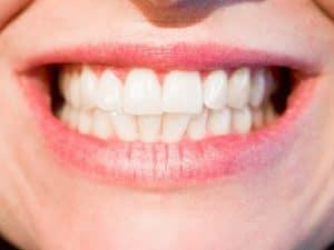 Schöne Fake Zähne – Die Lösung