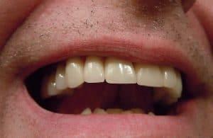 Was ist eine Zahnprothese?